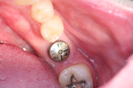 Before Single Implant